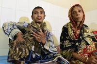 """Sempat Melarikan Diri, """"Manusia Pohon"""" Bangladesh Akan Kembali Jalani Perawatan di Rumah Sakit"""
