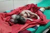 Bayi Perempuan Lahir Berkepala Tiga di India