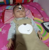 Alami Bocor Jantung-Katarak dan Tuli, Bayi Ini Butuh Biaya Pengobatan