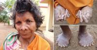 Miliki 31 Jari Tangan dan Kaki, Wanita Ini Dianggap Penyihir oleh Tetangganya