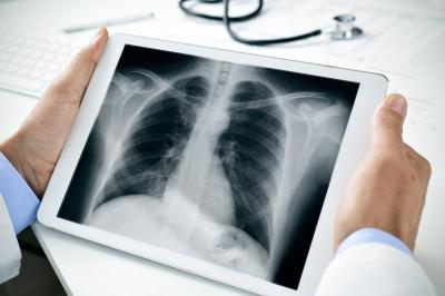 Waspada, TB Tulang Bisa Picu Kelumpuhan jika Telat Diobati
