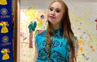 Curhatan Model Down Syndrome Pertama yang Ingin Taklukan Runway Chanel hingga Louis Vuitton