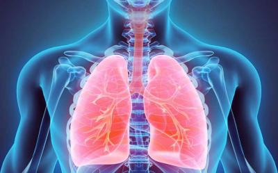Hari Tuberkulosis dunia, Kenali Lebih Jauh Penyakit Mematikan yang Mengancam Indonesia