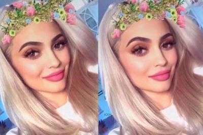 Snapchat Dysmorphia Tingkatkan Operasi Plastik di Kalangan Remaja?