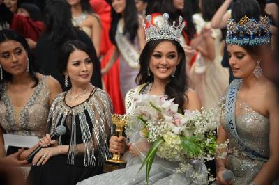 Karantina Miss World 2019, Princess Megonondo Alami Cedera Ringan