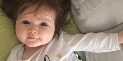Bayi Ajaib, Sudah Gondrong Sejak Dalam Kandungan