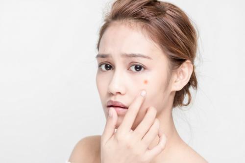 selama masa pubertas, ada perubahan hormonal yang menyebabkan wajah mudah berjerawat.