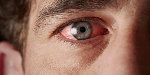 "masalah pada kelopak mata, serta kurangnya produksi air mata pada usia tua menjadi penyebabnya,"" lanjutnya."